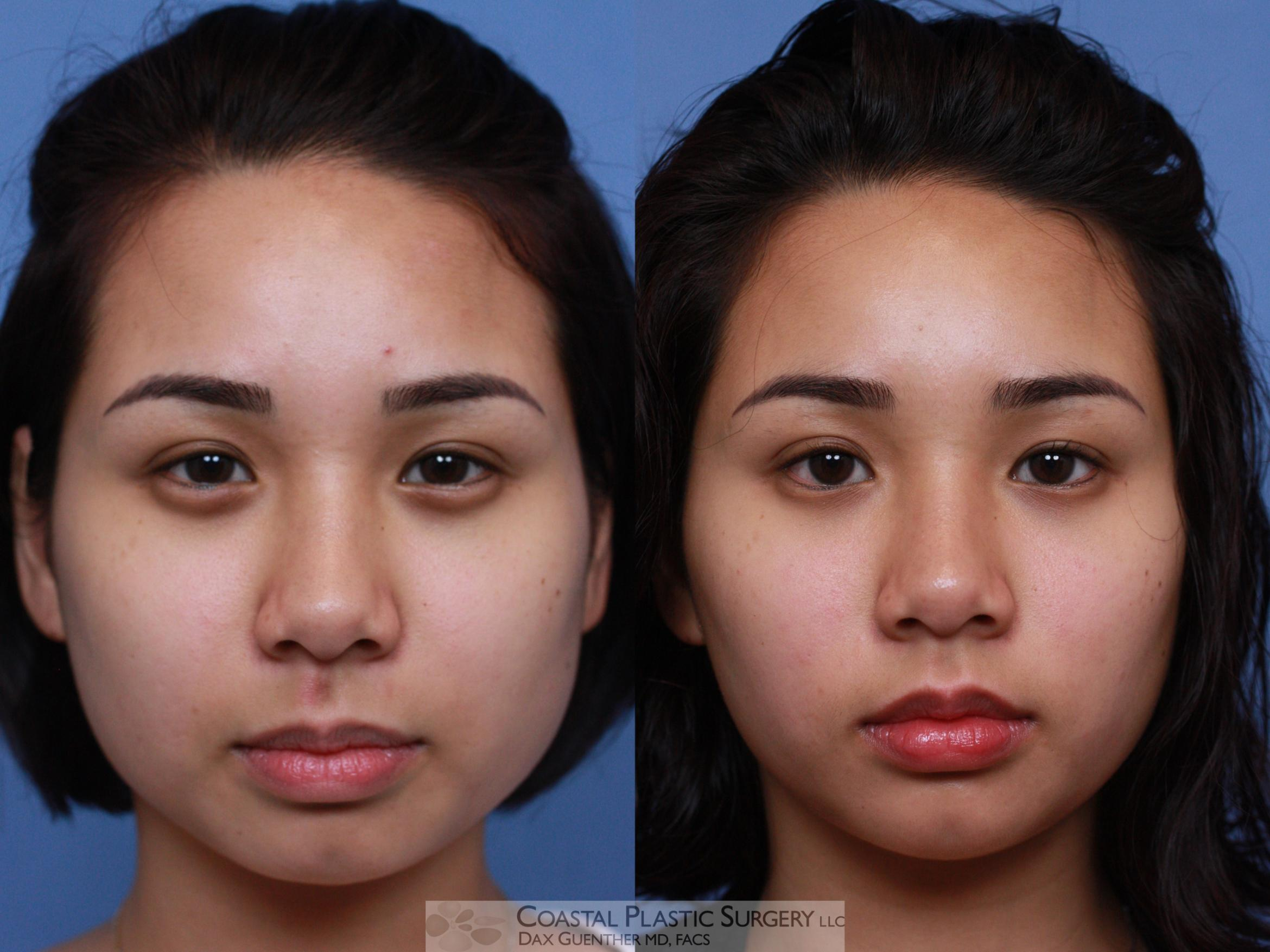 Botox & Dysport Before & After Photo | Hingham, MA | Dax Guenther, MD: Coastal Plastic Surgery