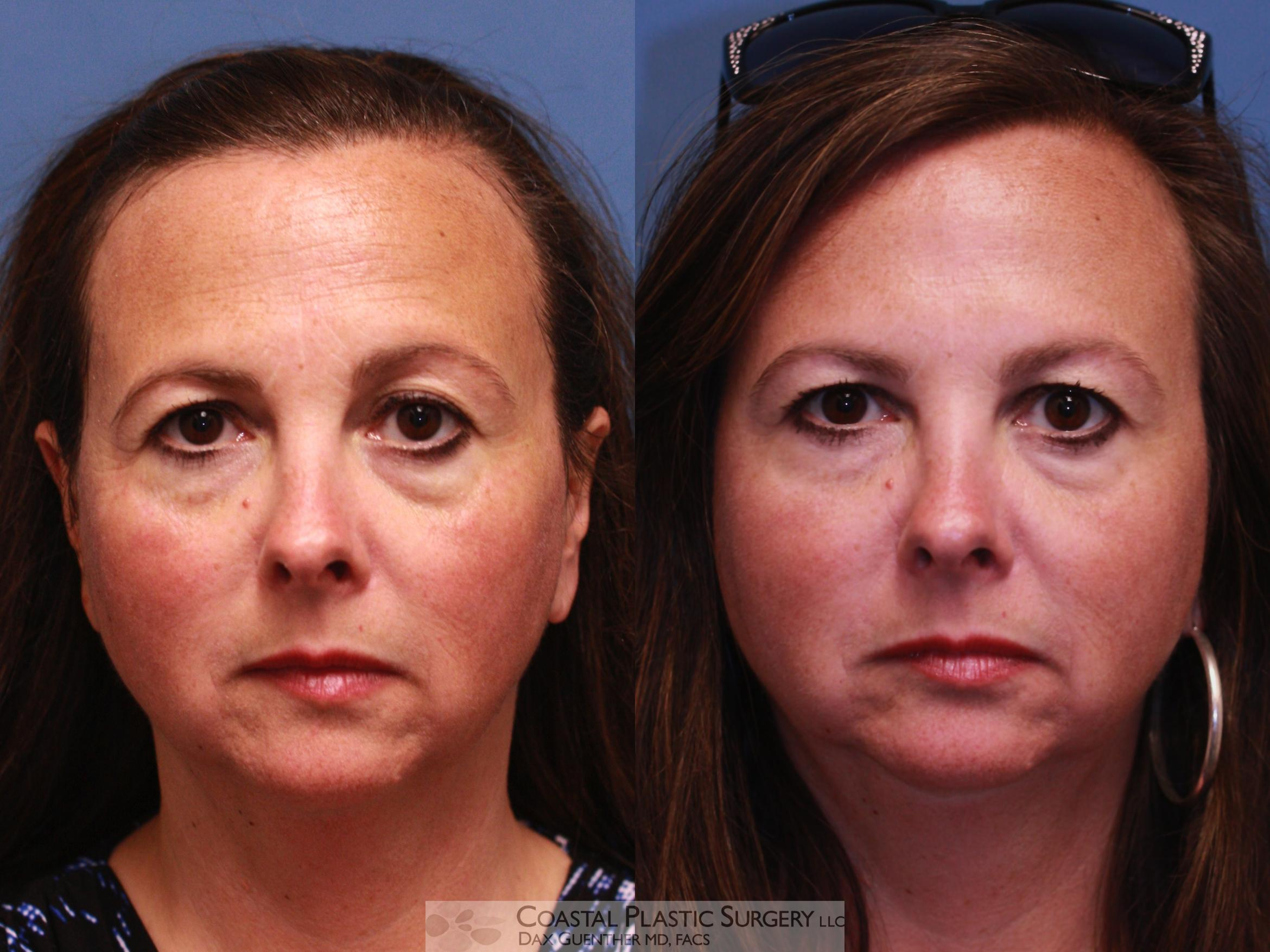 Botox & Dysport Before & After Photo | Hingham, Boston & Nantucket, MA | Dax Guenther, MD: Coastal Plastic Surgery