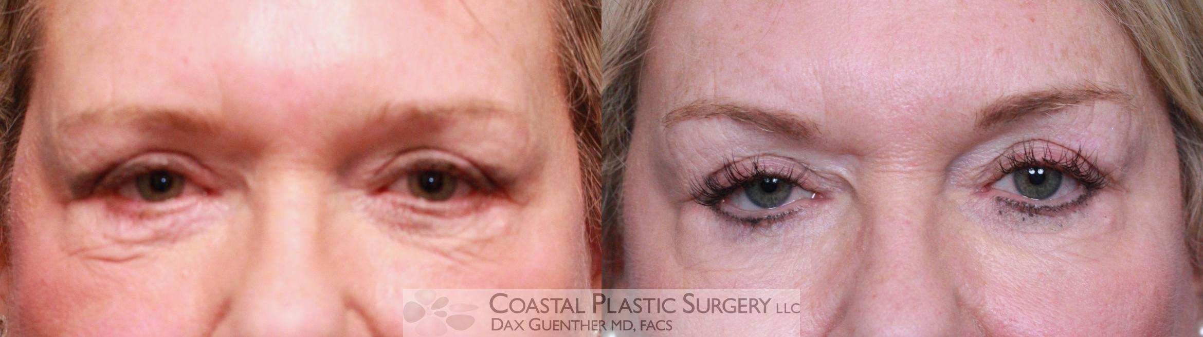 Botox/Dysport Before & After Photo | Hingham, MA | Dax Guenther, MD: Coastal Plastic Surgery