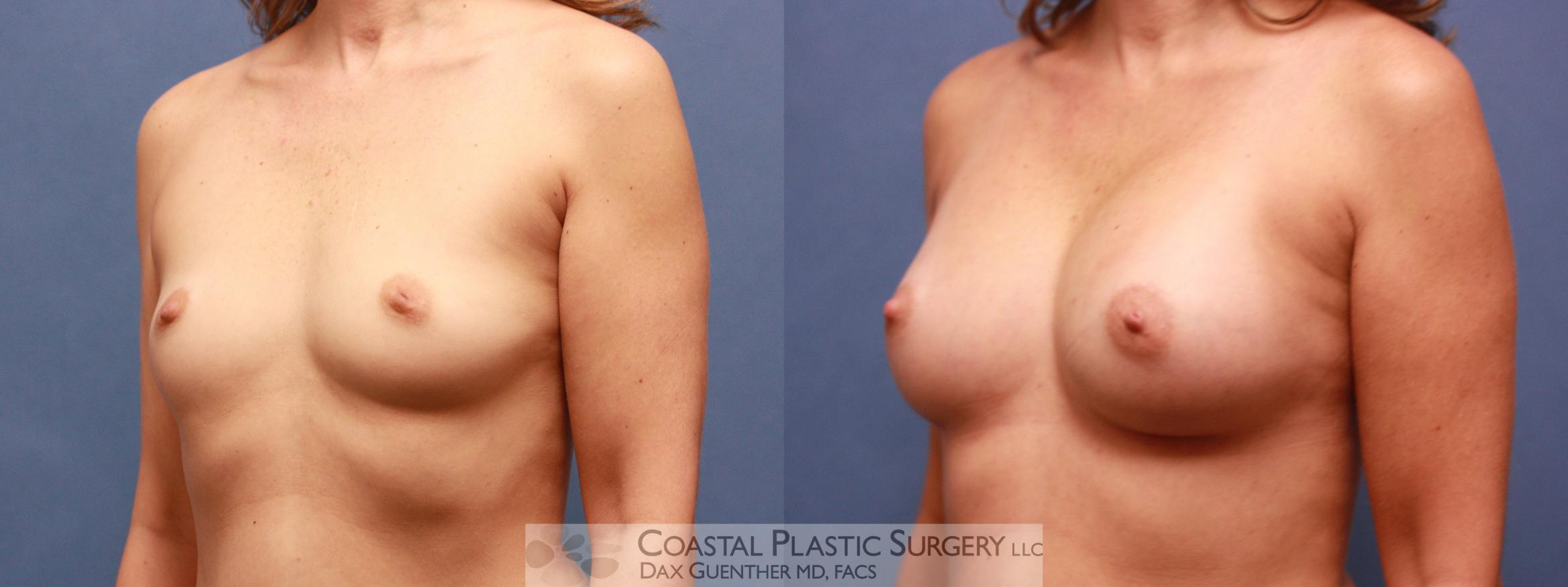 Breast Augmentation Before & After Photo | Hingham, Boston & Nantucket, MA | Dax Guenther, MD: Coastal Plastic Surgery