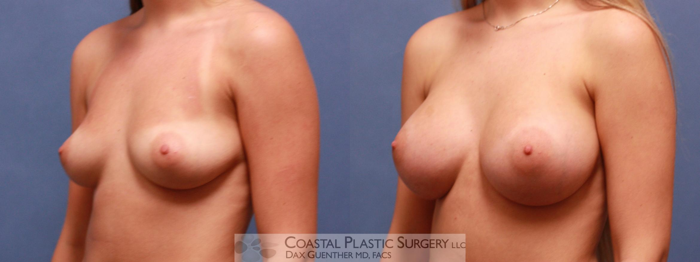 Breast Augmentation Before & After Photo | Hingham, MA | Dax Guenther, MD: Coastal Plastic Surgery