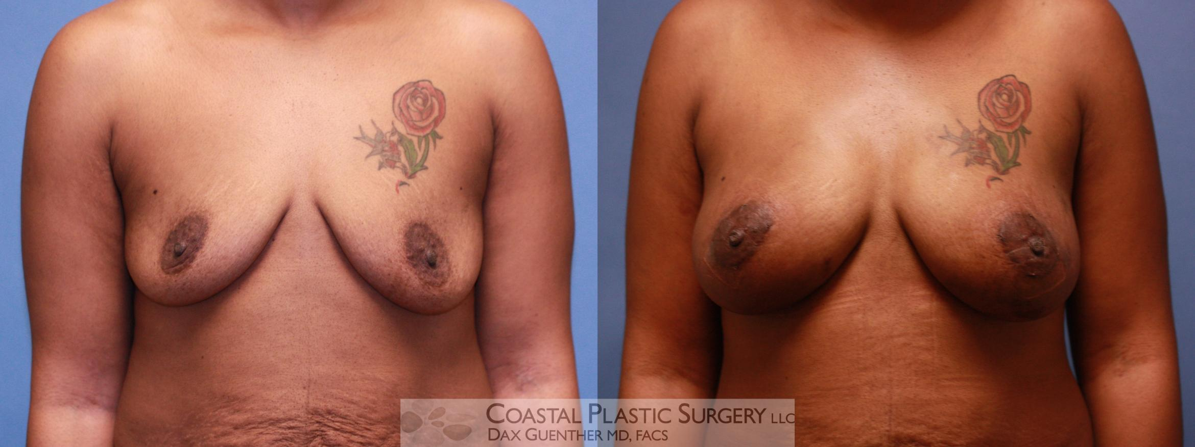 Breast Fat Transfer Before & After Photo | Hingham, Boston & Nantucket, MA | Dax Guenther, MD: Coastal Plastic Surgery