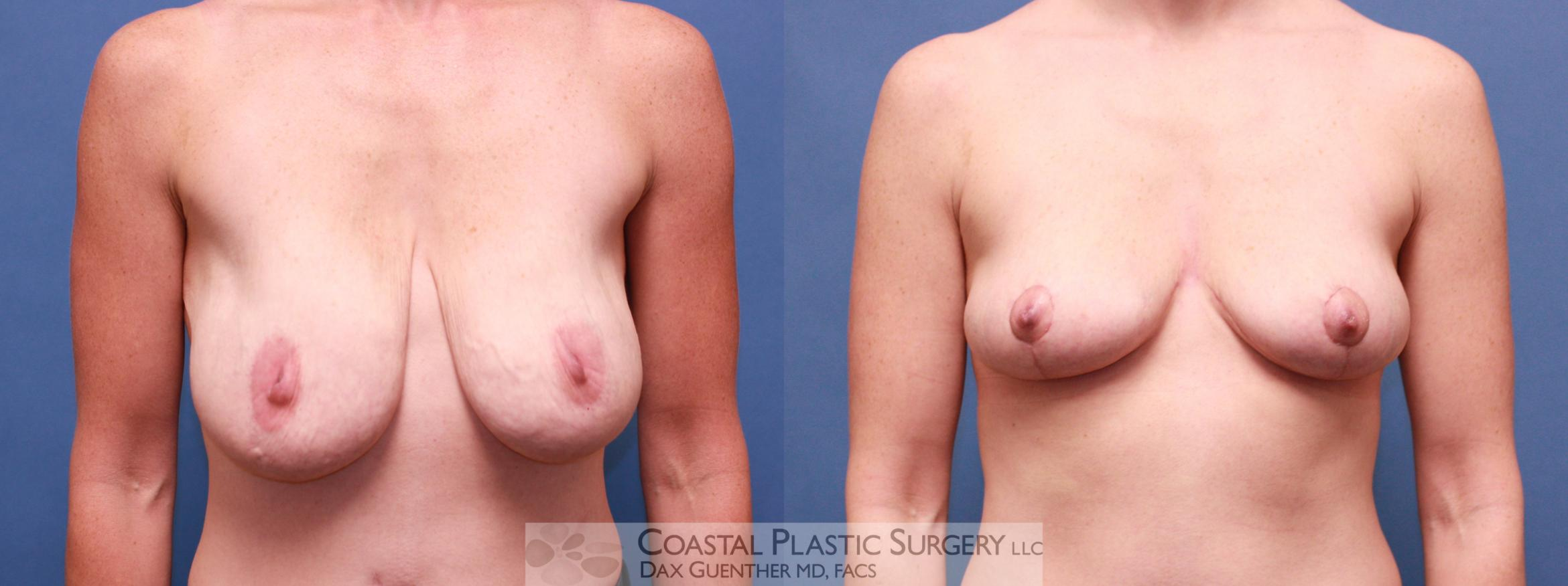 Breast Lift Before & After Photo | Hingham, Boston & Nantucket, MA | Dax Guenther, MD: Coastal Plastic Surgery