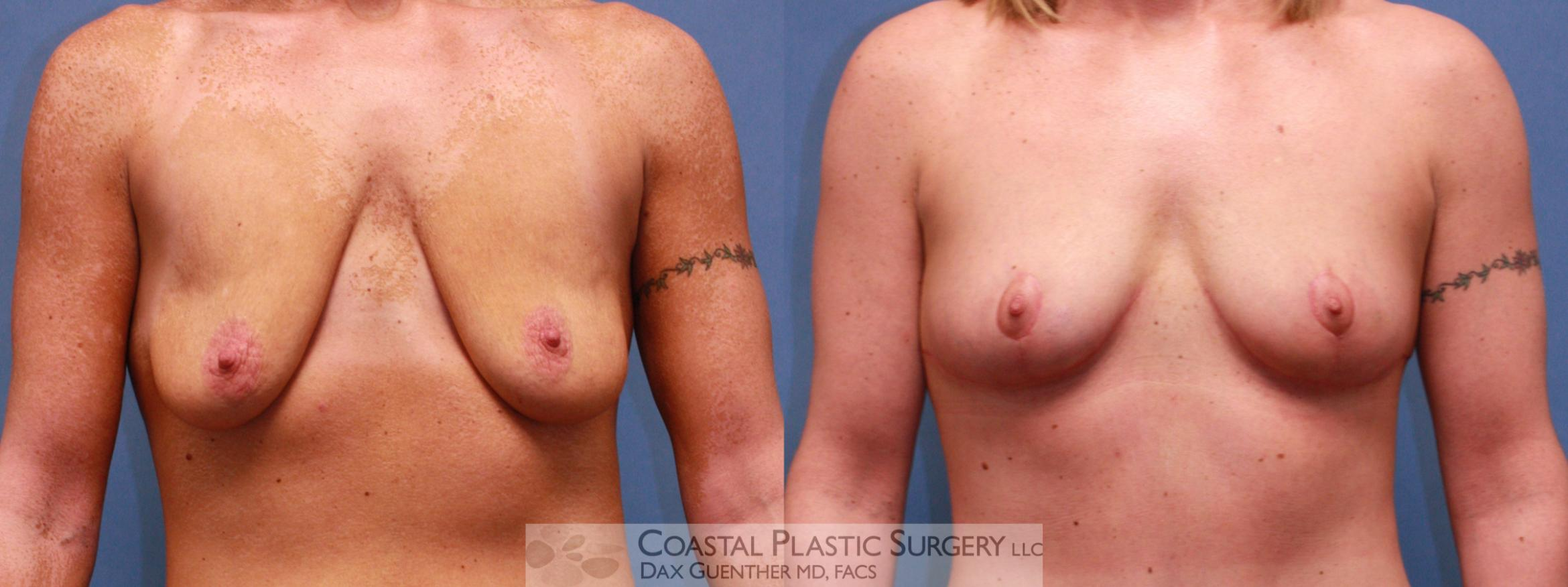 Breast Lift Before & After Photo | Hingham, MA | Dax Guenther, MD: Coastal Plastic Surgery