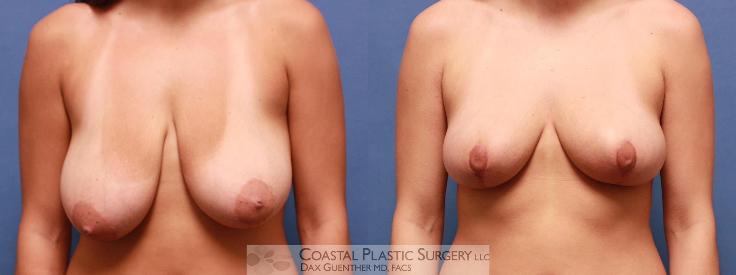 Breast Reduction Before & After Photo | Hingham, MA | Dax Guenther, MD: Coastal Plastic Surgery