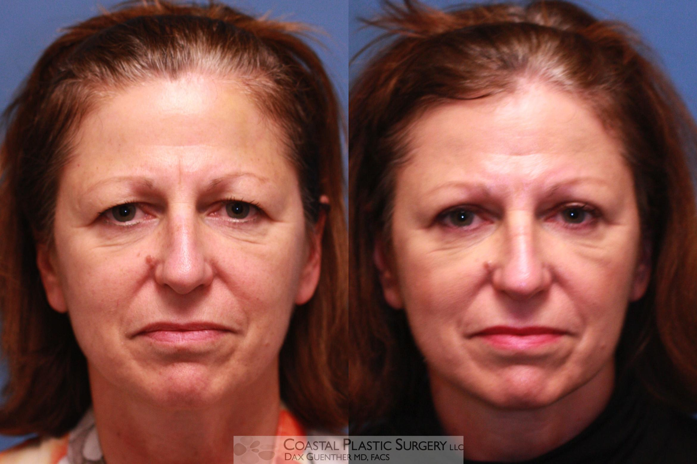 Brow Lift Before & After Photo | Hingham, MA | Dax Guenther, MD: Coastal Plastic Surgery