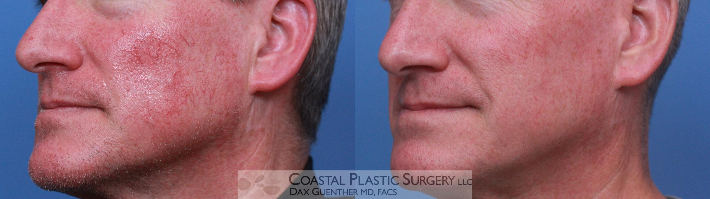 Chemical Peels & Lasers/Lights Before & After Photo | Hingham, Boston & Nantucket, MA | Dax Guenther, MD: Coastal Plastic Surgery