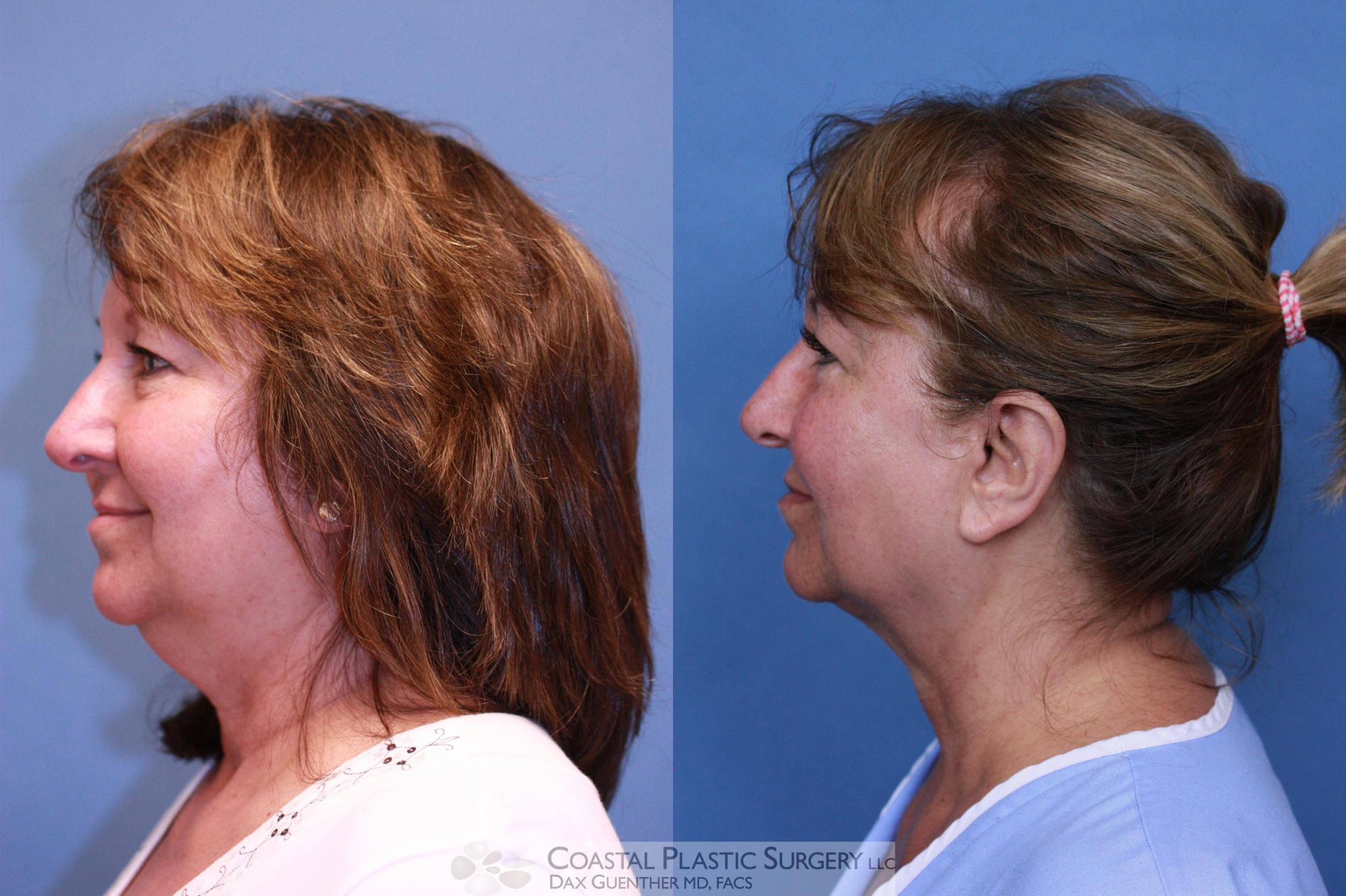 CoolSculpting Before & After Photo | Hingham, MA | Dax Guenther, MD: Coastal Plastic Surgery