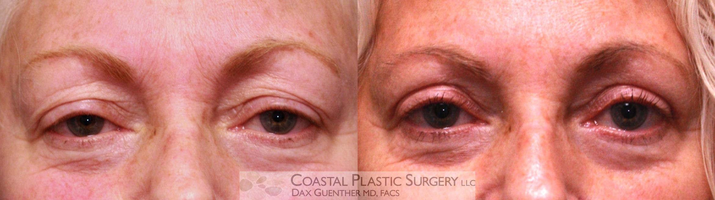 Eyelid Surgery (Blepharoplasty) Before & After Photo | Hingham, MA | Dax Guenther, MD: Coastal Plastic Surgery