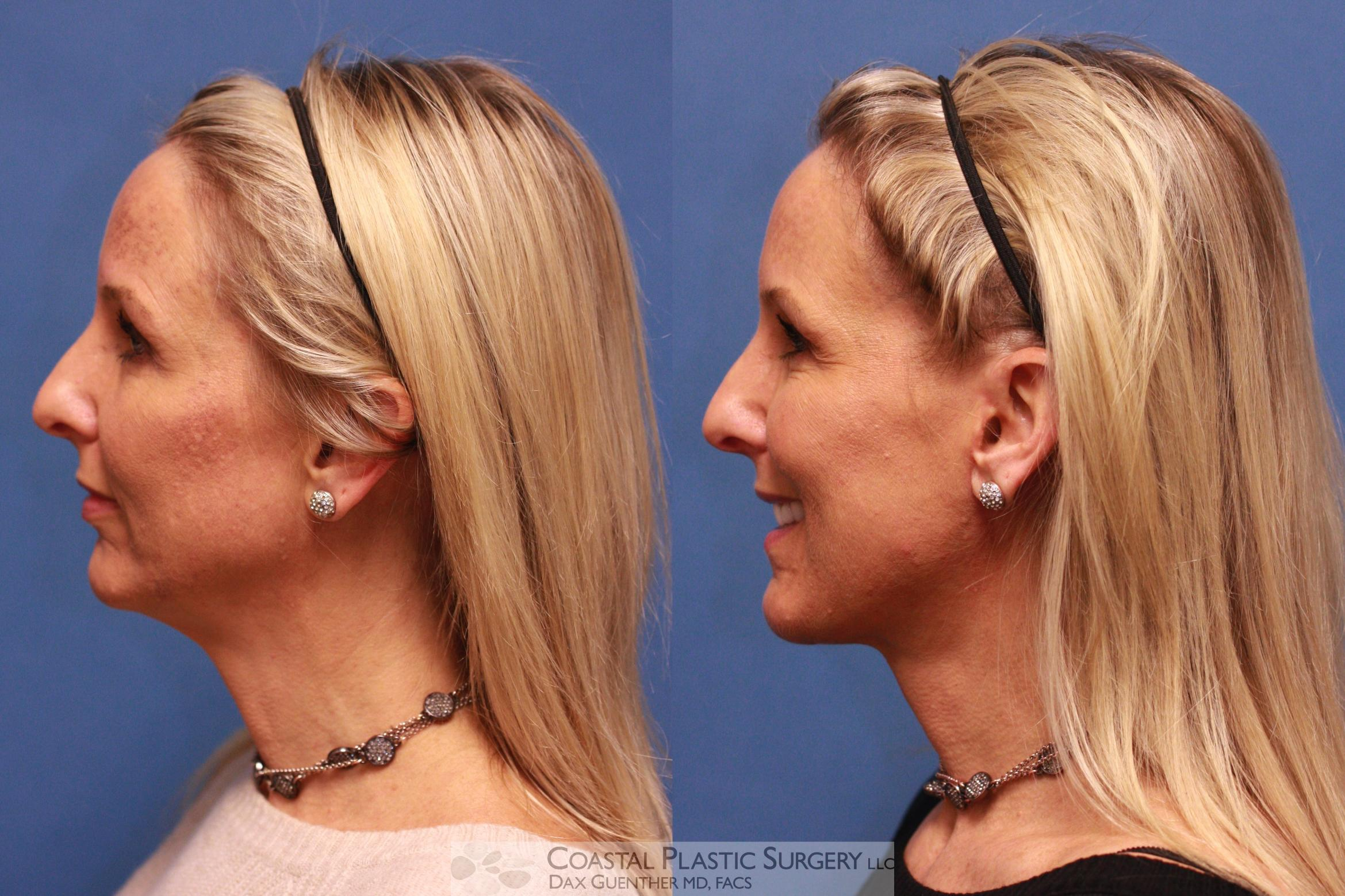 Face/Neck Lift Before & After Photo | Hingham, MA | Dax Guenther, MD: Coastal Plastic Surgery