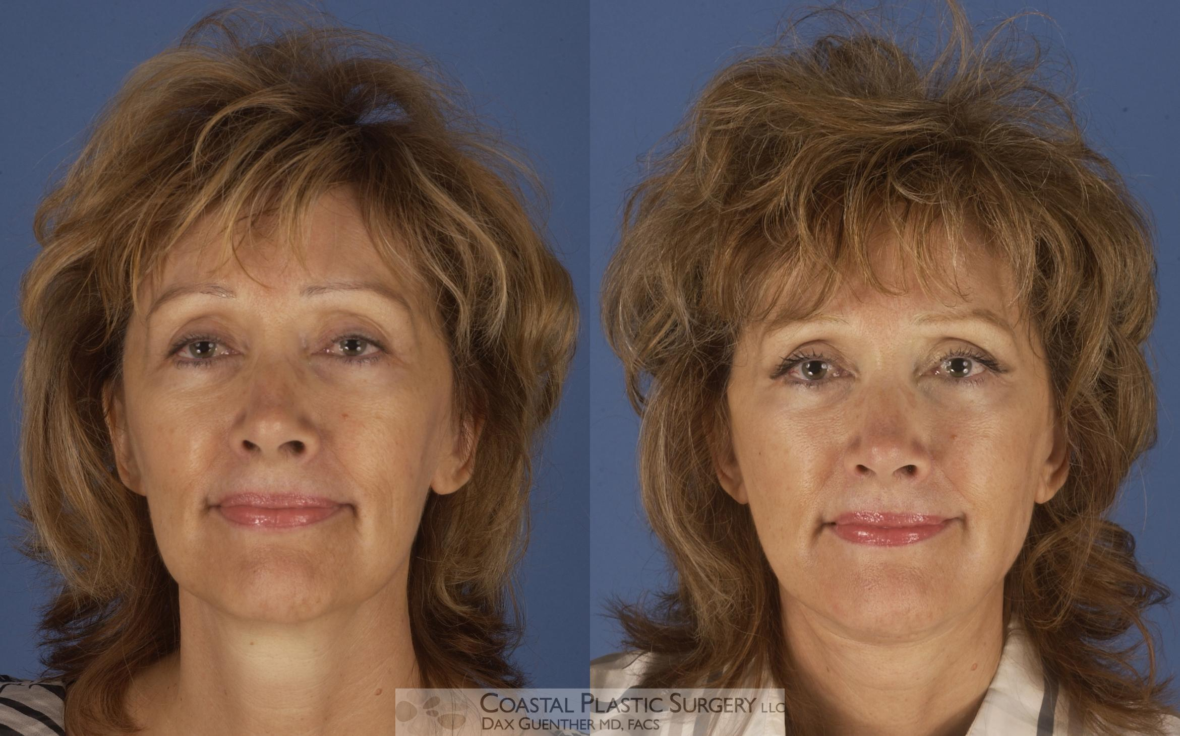 Face/Neck Lift Before & After Photo | Hingham, Boston & Nantucket, MA | Dax Guenther, MD: Coastal Plastic Surgery