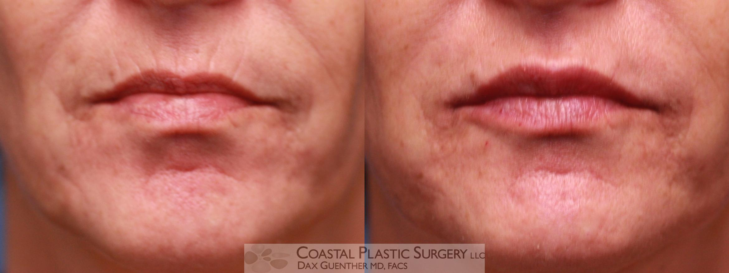Fillers Before & After Photo | Hingham, MA | Dax Guenther, MD: Coastal Plastic Surgery