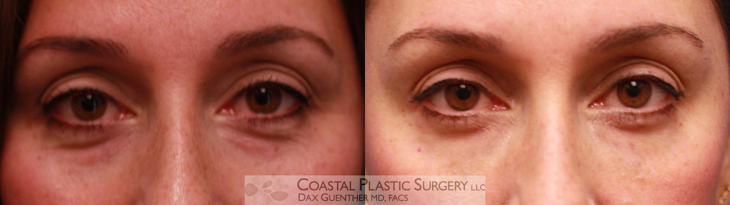 Fillers & Threads Before & After Photo | Hingham, MA | Dax Guenther, MD: Coastal Plastic Surgery
