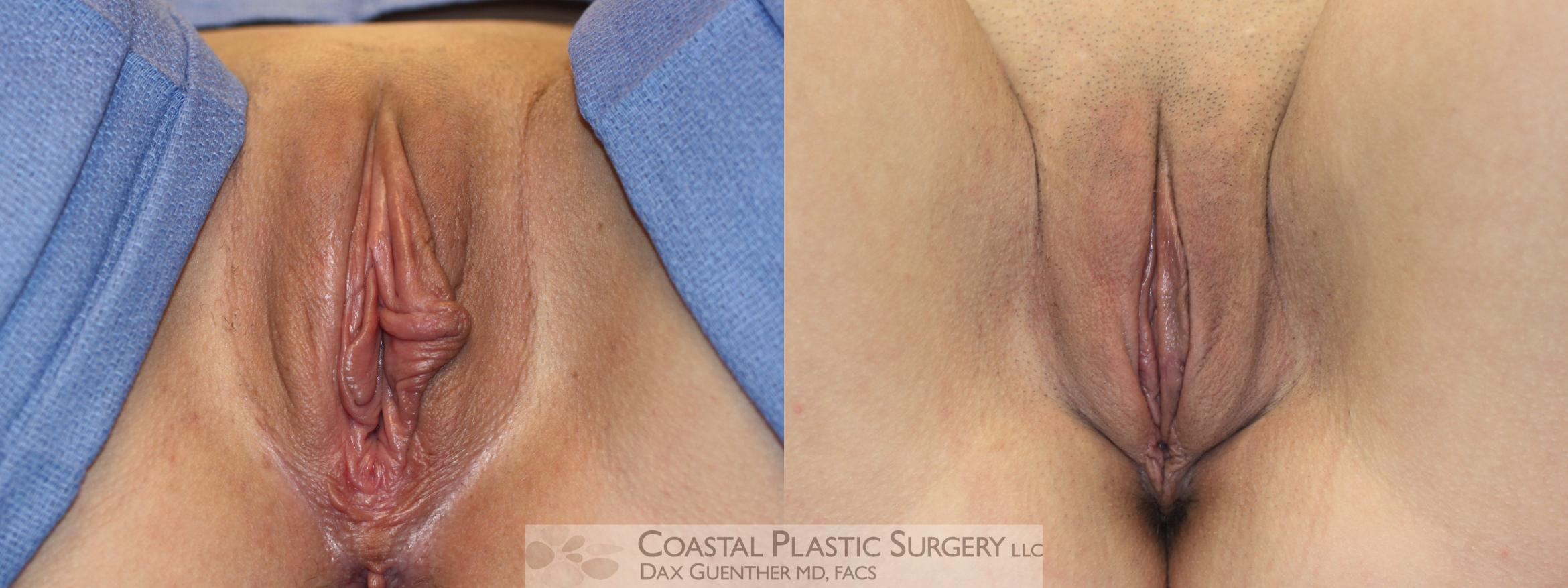 Labiaplasty Before & After Photo | Hingham, Boston & Nantucket, MA | Dax Guenther, MD: Coastal Plastic Surgery