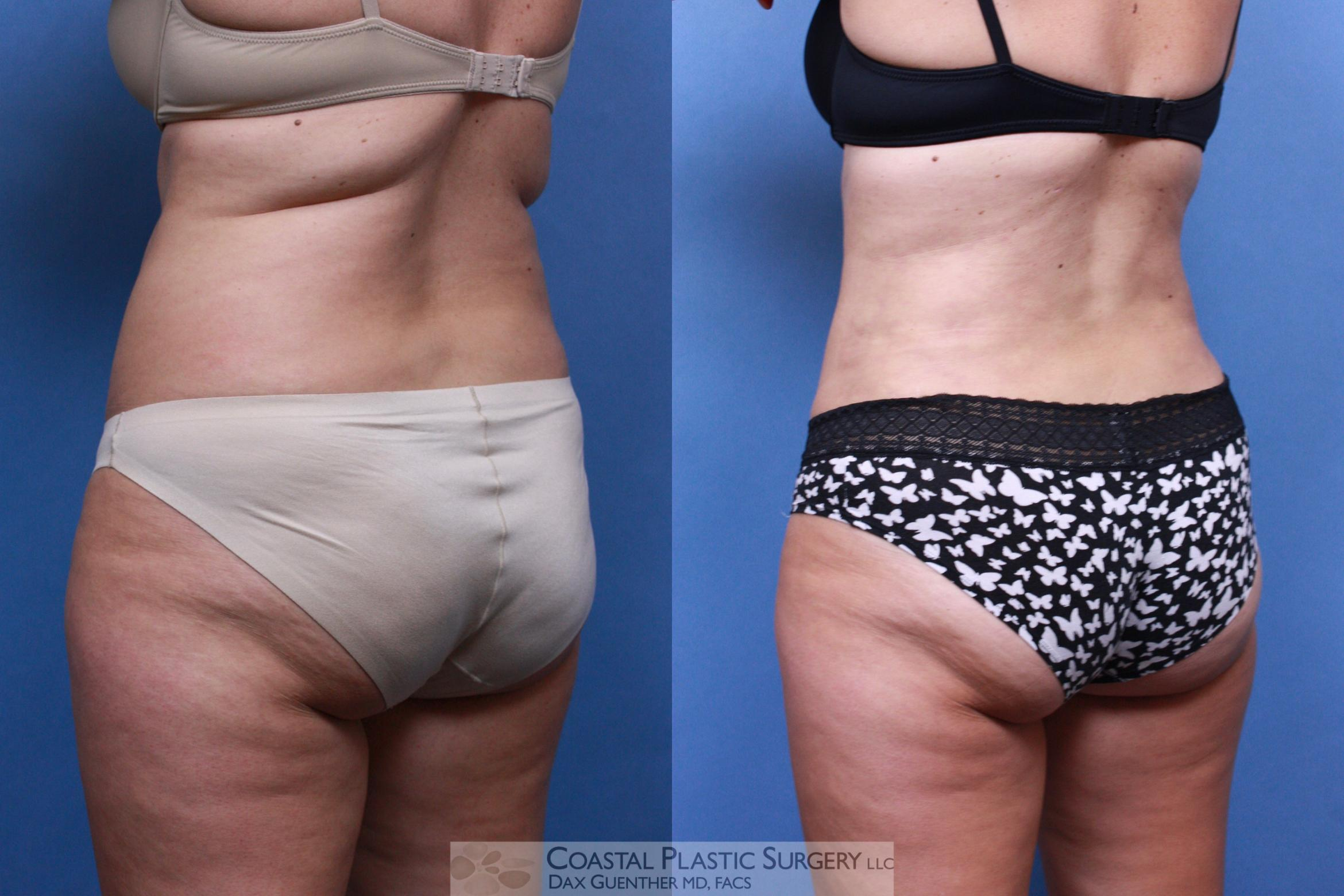 Liposuction Before & After Photo | Hingham, MA | Dax Guenther, MD: Coastal Plastic Surgery