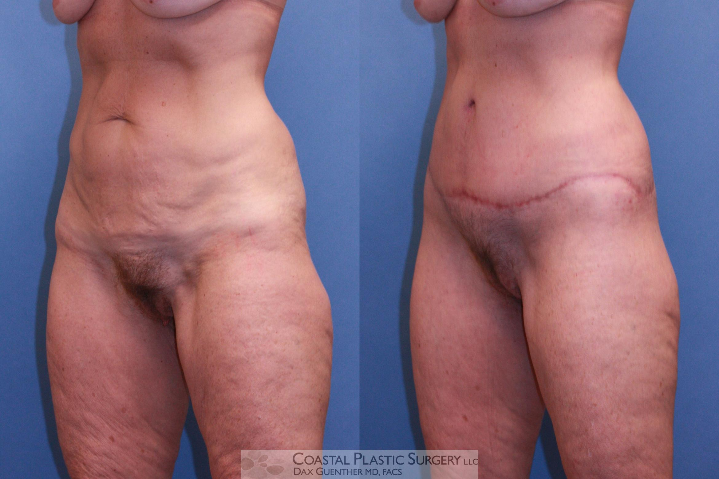 Lower Body Lift (Belt Lipectomy) Before & After Photo | Hingham, Boston & Nantucket, MA | Dax Guenther, MD: Coastal Plastic Surgery