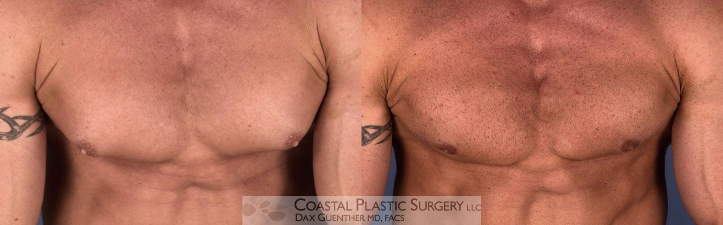 Male Breast Reduction (Gynecomastia) Before & After Photo | Hingham, MA | Dax Guenther, MD: Coastal Plastic Surgery