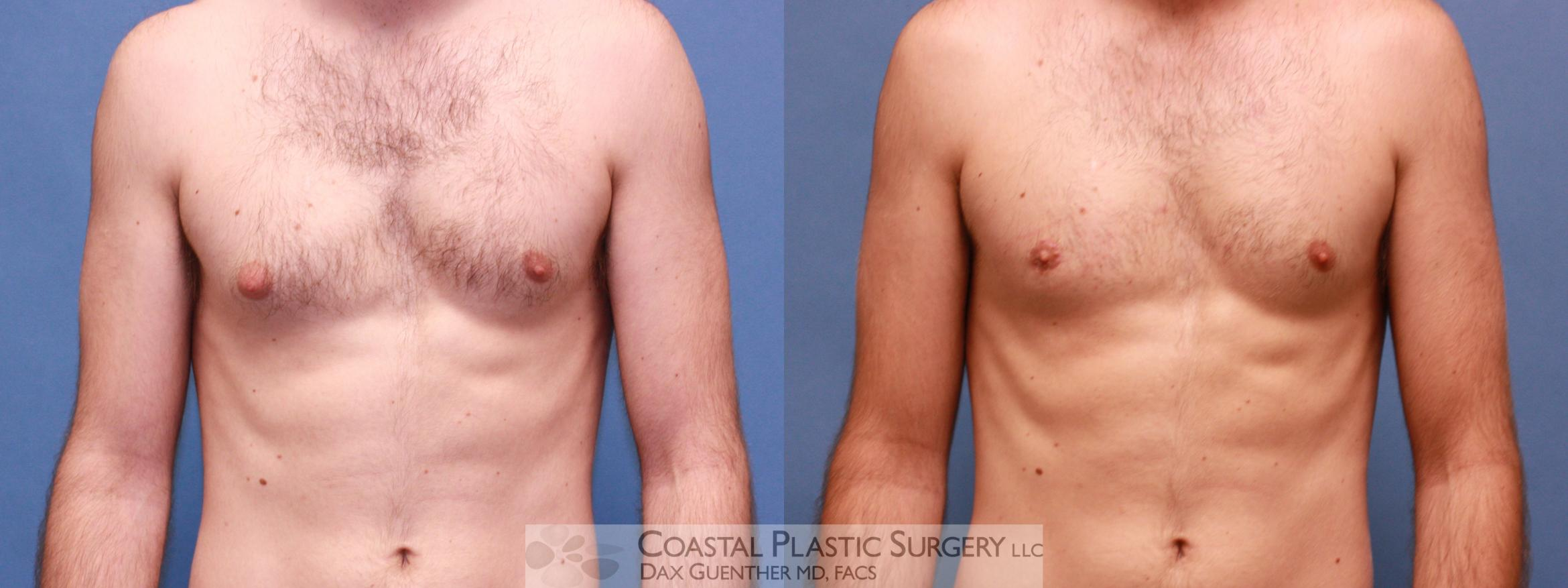 Male Breast Reduction (Gynecomastia) Before & After Photo | Hingham, Boston & Nantucket, MA | Dax Guenther, MD: Coastal Plastic Surgery