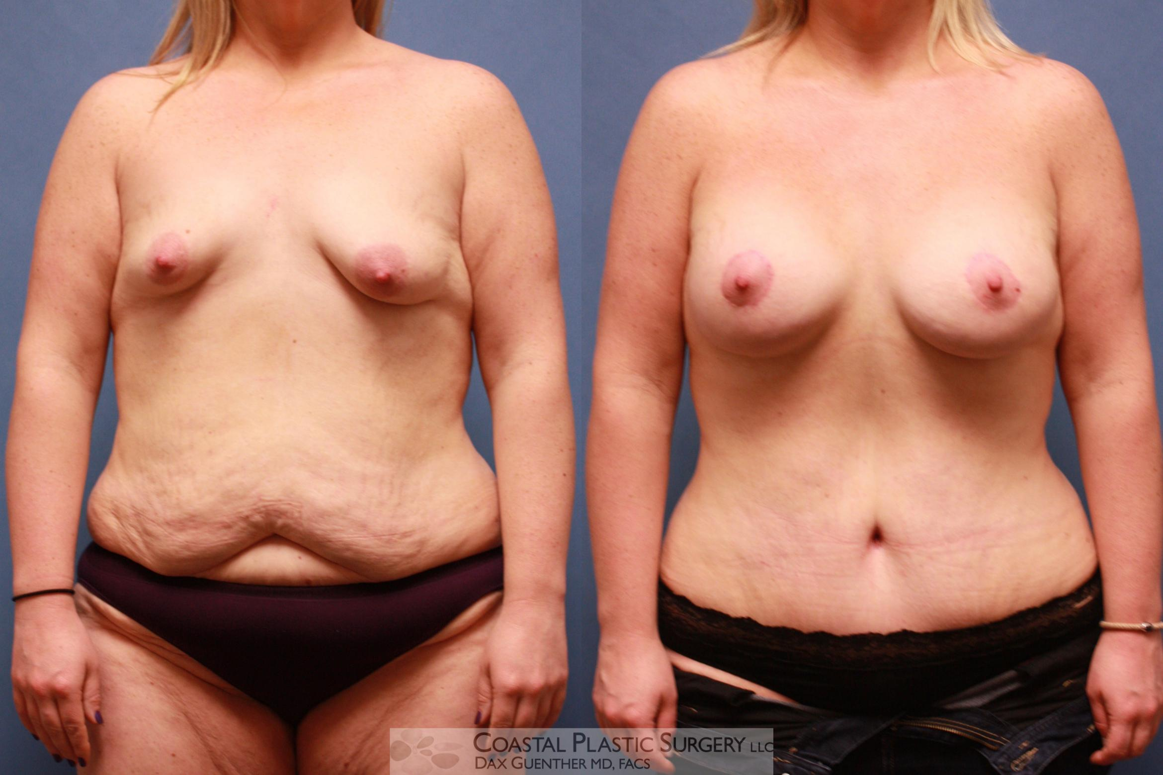 Mommy Makeover Before & After Photo | Hingham, Boston & Nantucket, MA | Dax Guenther, MD: Coastal Plastic Surgery