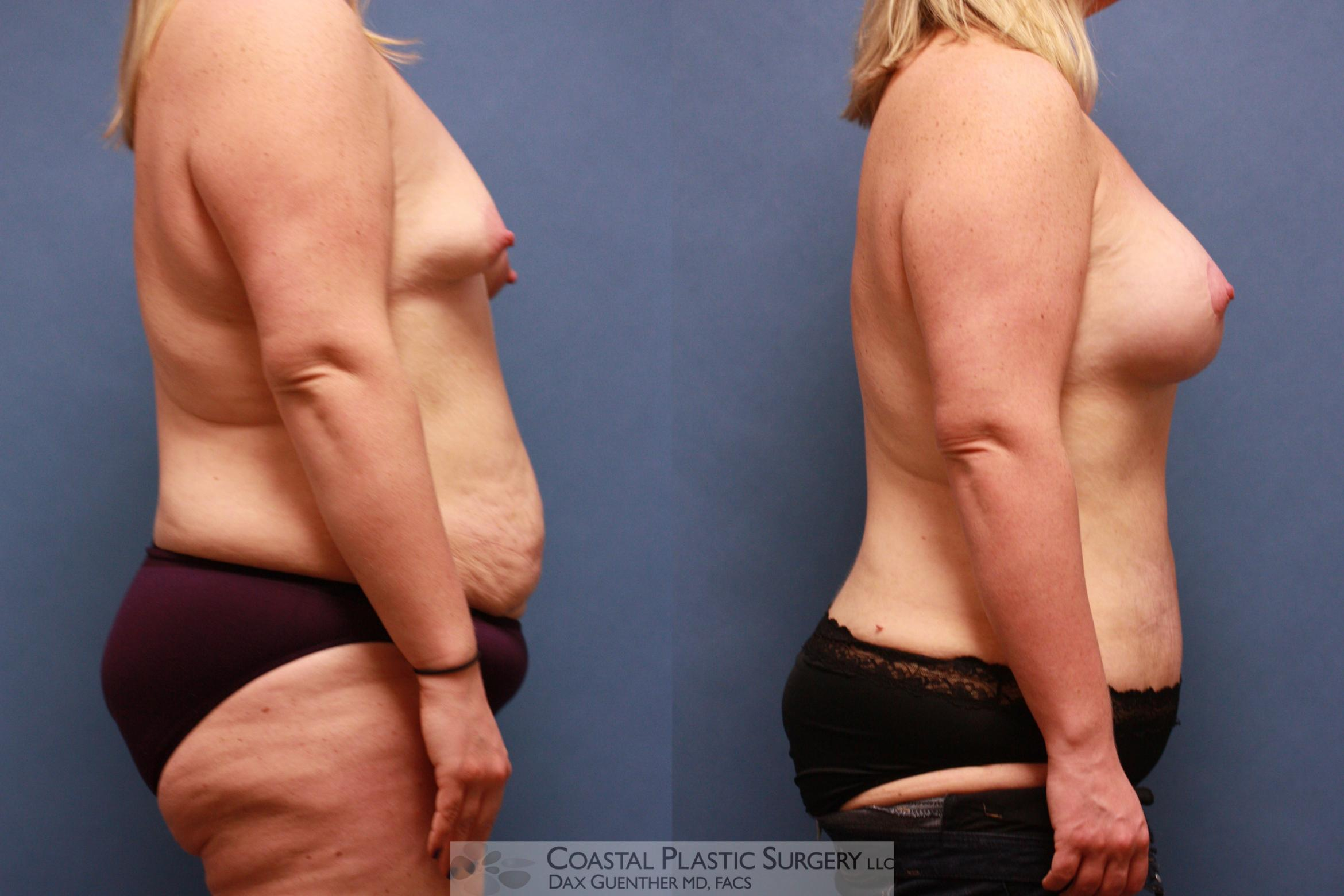 Mommy Makeover Before & After Photo | Hingham, MA | Dax Guenther, MD: Coastal Plastic Surgery