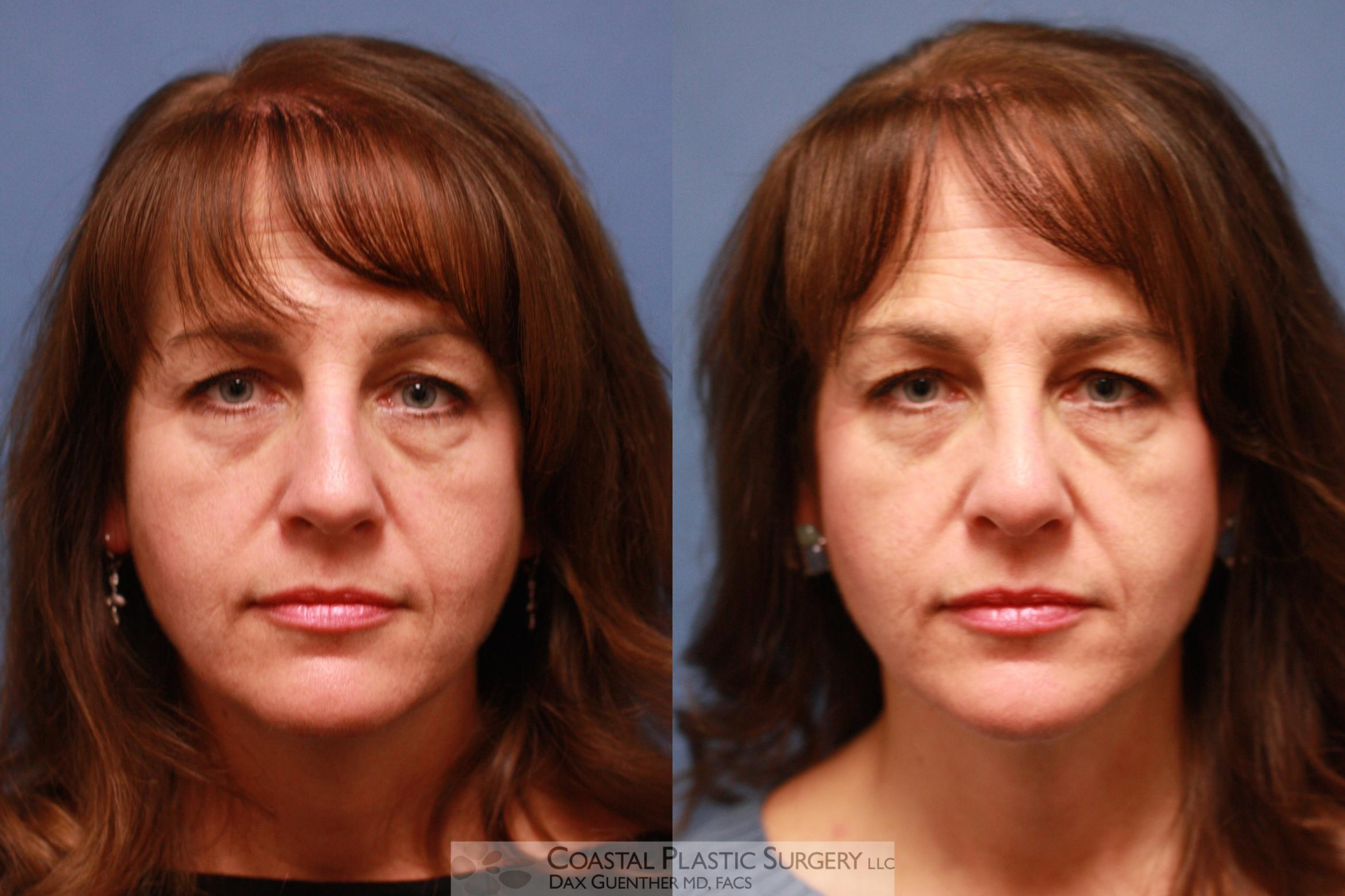Rhinoplasty Before & After Photo | Hingham, MA | Dax Guenther, MD: Coastal Plastic Surgery