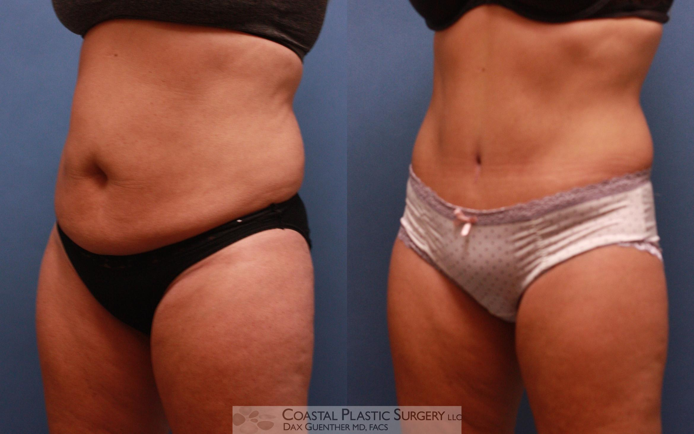 Tummy Tuck (Abdominoplasty) Before & After Photo | Hingham, MA | Dax Guenther, MD: Coastal Plastic Surgery